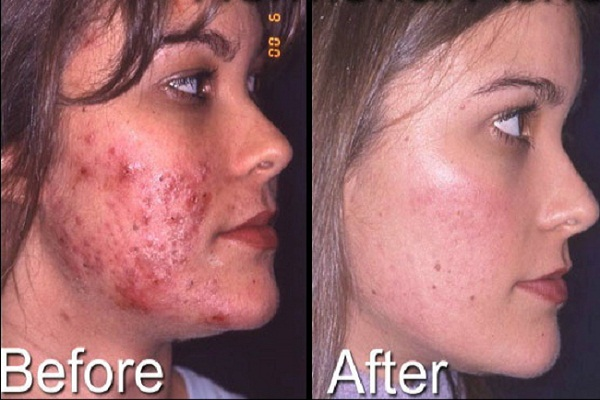 Accutane isotretinoin)   how it works, side effects, and